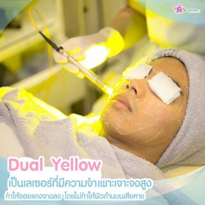 Dual Yellow เลเซอร์หน้า